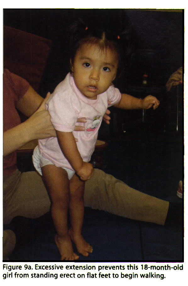 Figure 9a. Excessive extension prevents this 18-month-old girl from standing erect on flat feet to begin walking.