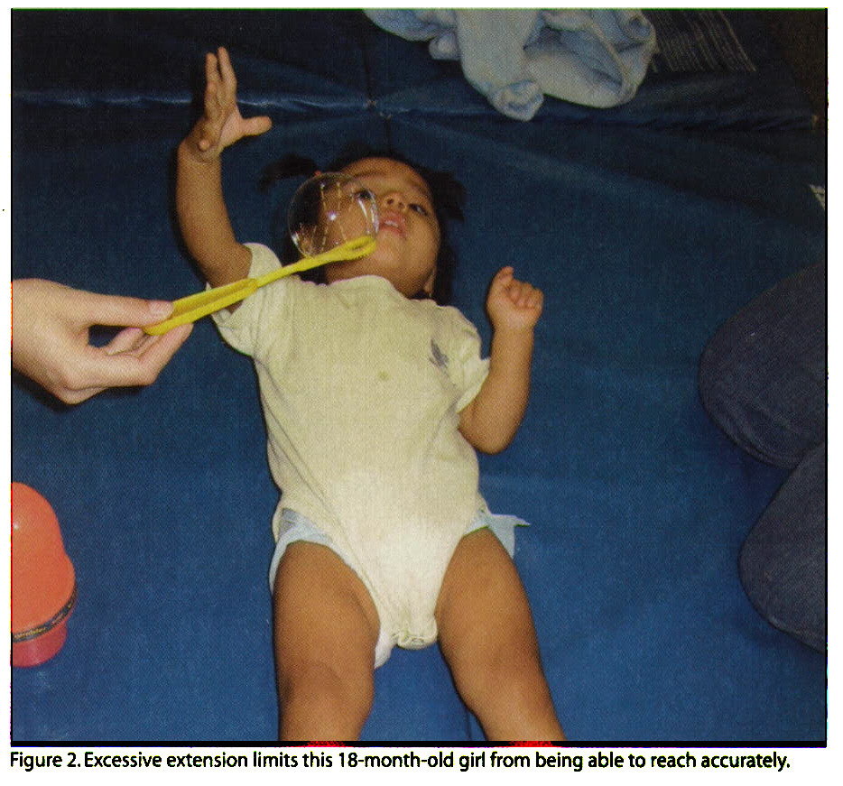 Figure 2. Excessive extension limits this 18-month-old girl from being able to reach accurately.