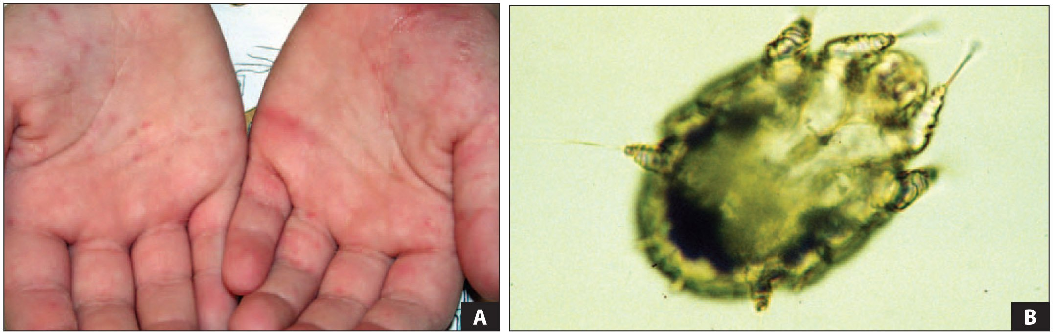 A. Scabies with Burrows in an Adult Patient. B. Scabies Mite (larva) Seen from Oil Preparation of Skin Scraping.