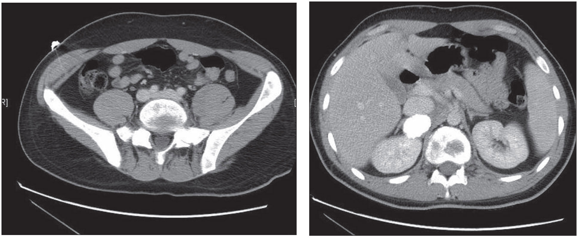 CT Scan of the Abdomen Revealed a Large, Right Adrenal Mass with a Large Calcified Component and Multiple Scattered Lucencies Throughout the Spine and Pelvis.