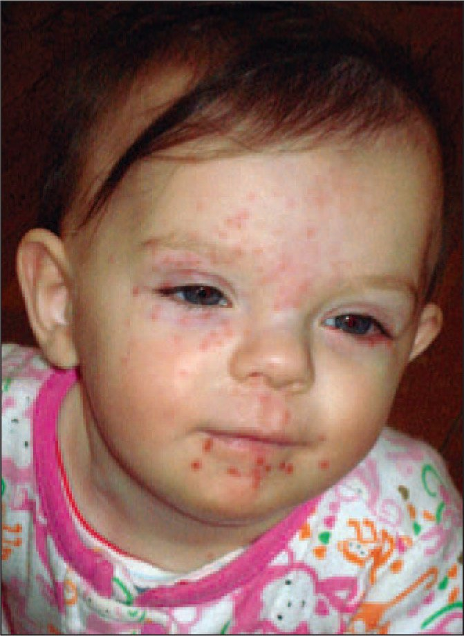 Recurrent Eczema Herpeticum in a 10-Month-Old Girl with Atopic Dermatitis. Ophthalmology Consultation Was Indicated Due to the Periocular Lesions. This Infant Required Prophylactic Daily Suppressive Dosing of Acyclovir, in Addition to Atopic Dermatitis Therapy.