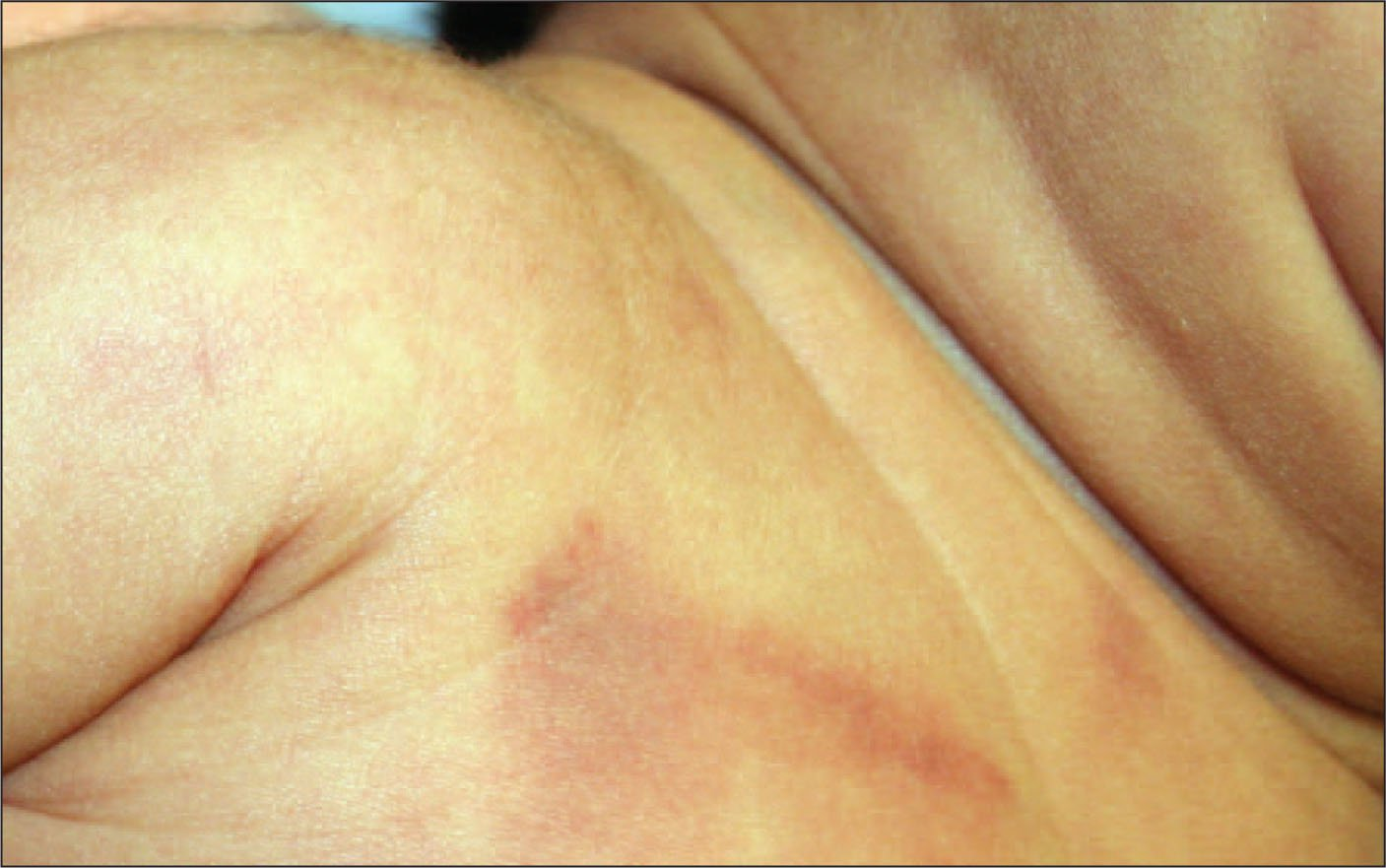 This 1-Month-Old Presented with a Limp Arm and This Chest Bruise. Skeletal Survey Revealed a Humeral Fracture.