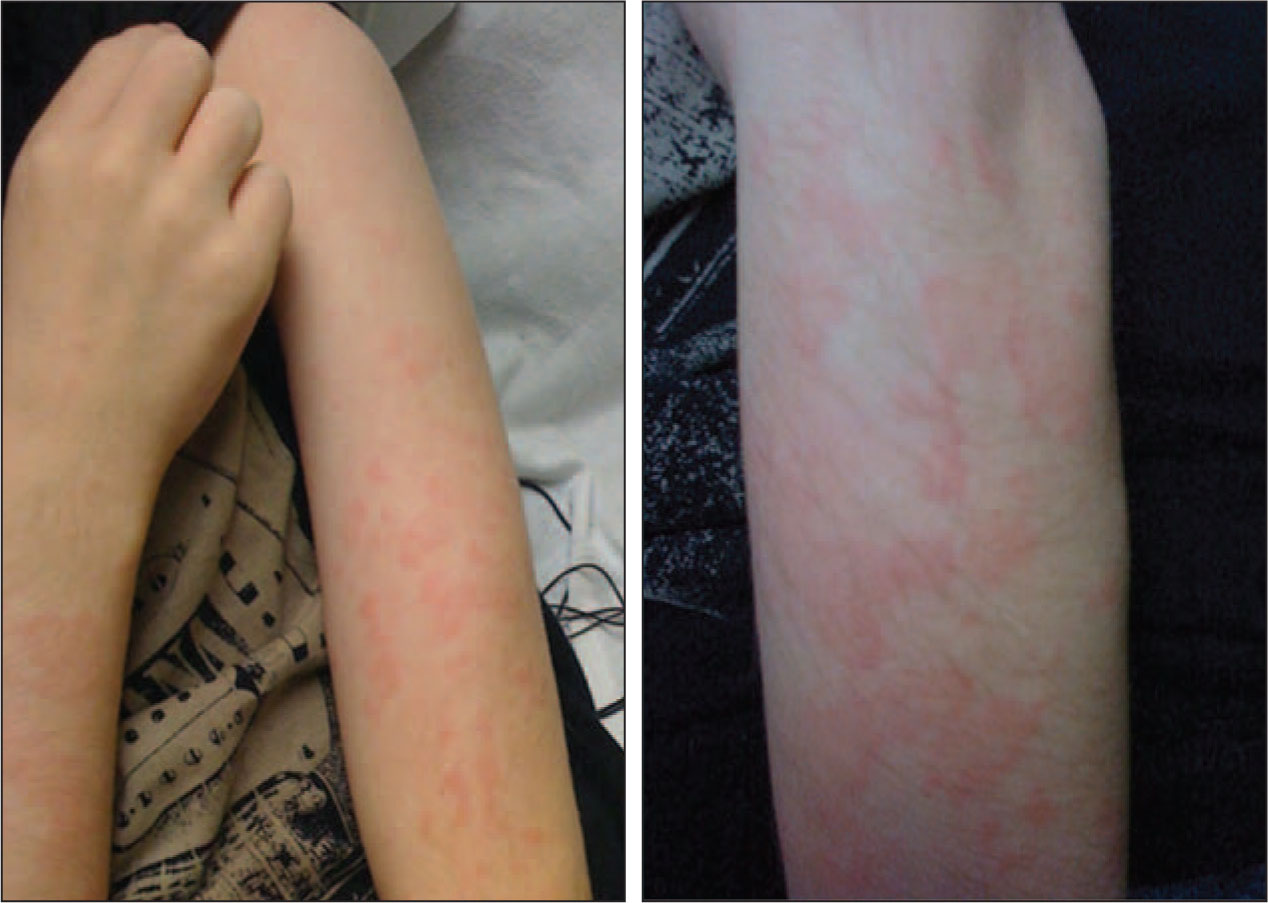 Erythematous Rash Consisting of Multiple Wheals of Varying Sizes Located on the Arms.