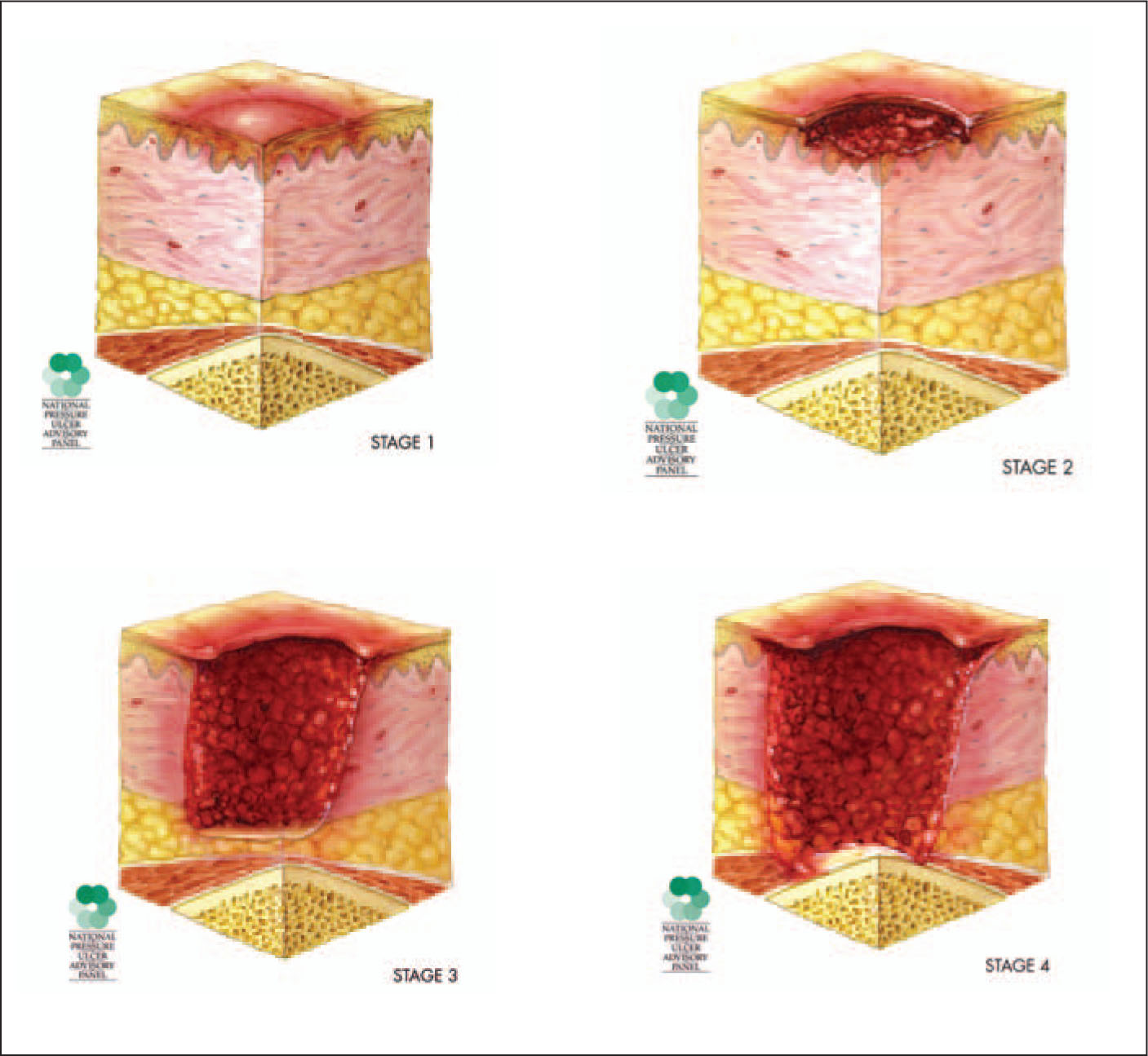 "Staging of Pressure Ulcers. Stage 1: Nonblanchable Erythema (redness that Does not Quickly Fade) of Intact (unbroken) Skin; Could also Include Warmth, Swelling. Dark Skin Might Appear Discolored Instead of Red. Stage 2: Superficial (not Very Deep) Ulcers with Loss of Epidermis (outer Layers of Skin), Dermis (underlying, Still Developing Skin Tissue) or Both. They May Look Similar to a Scrape, Blister, ""zit,"" or Crater. Stage 3: Skin Loss to Outer and Underlying Layers of Skin Tissue, with Damage All the Way down to Fascia (connective Tissue of Body). Stage 4: Skin Loss to Outer and Underlying Layers of Skin Tissue, with a Great Deal of Damage and Dead Tissue in the Fascia, Muscle, Bone, Tendon, or Joint Capsule. Images Reproduced with Permission from National Pressure Ulcer Advisory Panel."