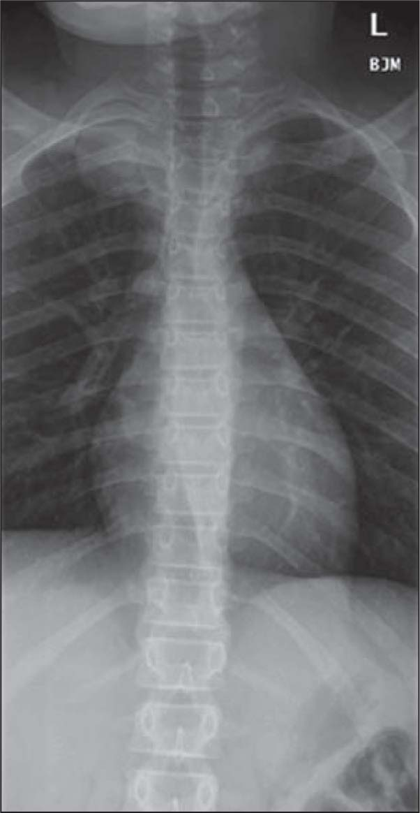 Plain X-Ray of the T-Spine Showing a 4.6-cm Right Apical Mass with Irregularity of the Adjacent T2 Vertebral Body.
