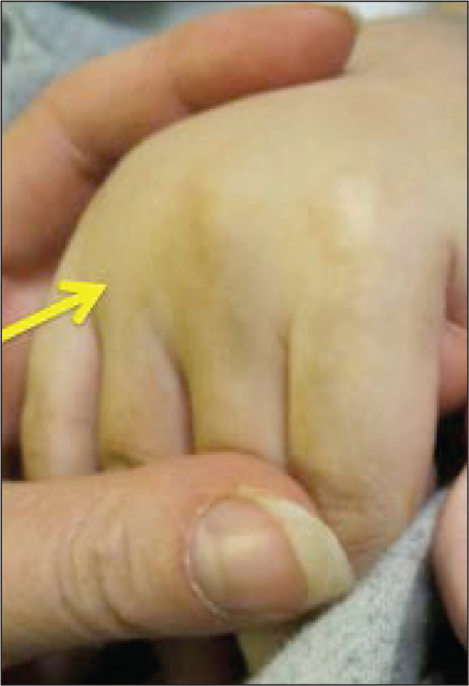 In this patient with metacarpophalangeal (MCP) arthritis, there is obscuring of the knuckle due to synovial hypertrophy (arrow). The valleys in between the MCP joints feel thickened and are tender to palpation when squeezed together.
