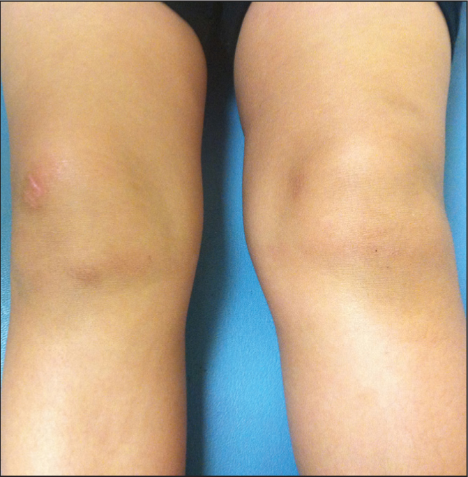 Left knee swelling. In oligoarticular juvenile idiopathic arthritis, although the affected joint is swollen, there is minimal tenderness and erythema.Image courtesy of Joyce S. Hui-Yuen, MD, MSc; and Lisa F. Imundo, MD. Reprinted with permission.