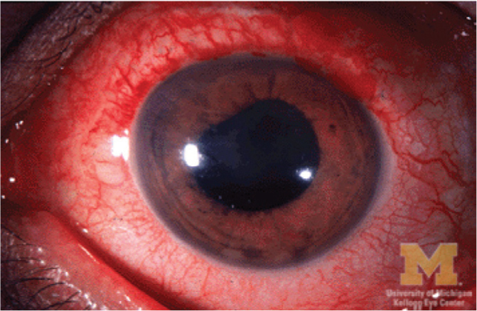 Acute anterior uveitis and posterior synechiae.Image courtesy of University of Michigan Kellog Eye Center. Reprinted with permission.