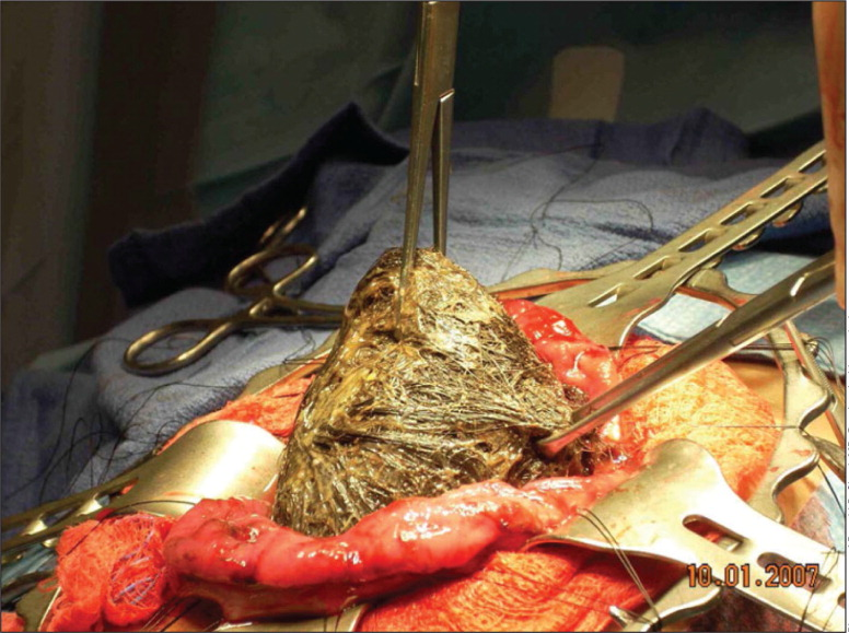 Trichobezoar being removed from patient.Photo courtesy of Donald B. Shaul, MD. Reprinted with permission.