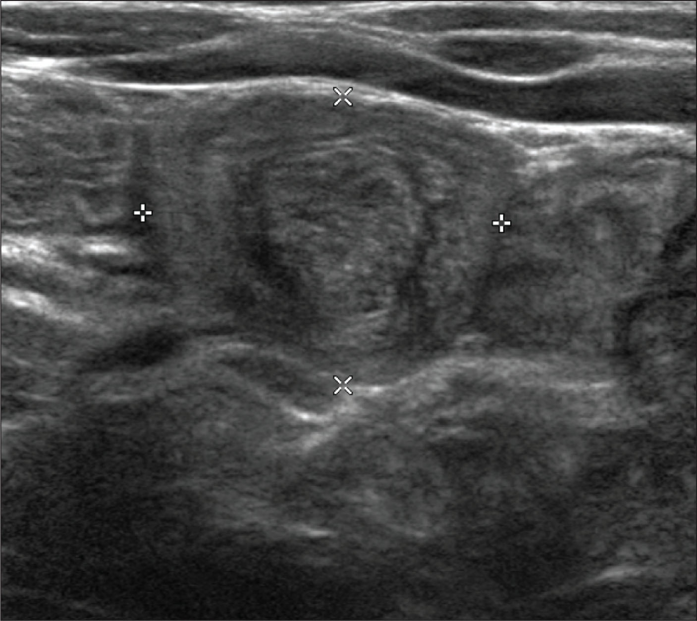 Abdominal ultrasound of the patient.Image courtesy of Amanda Galloway, MD, PhD.
