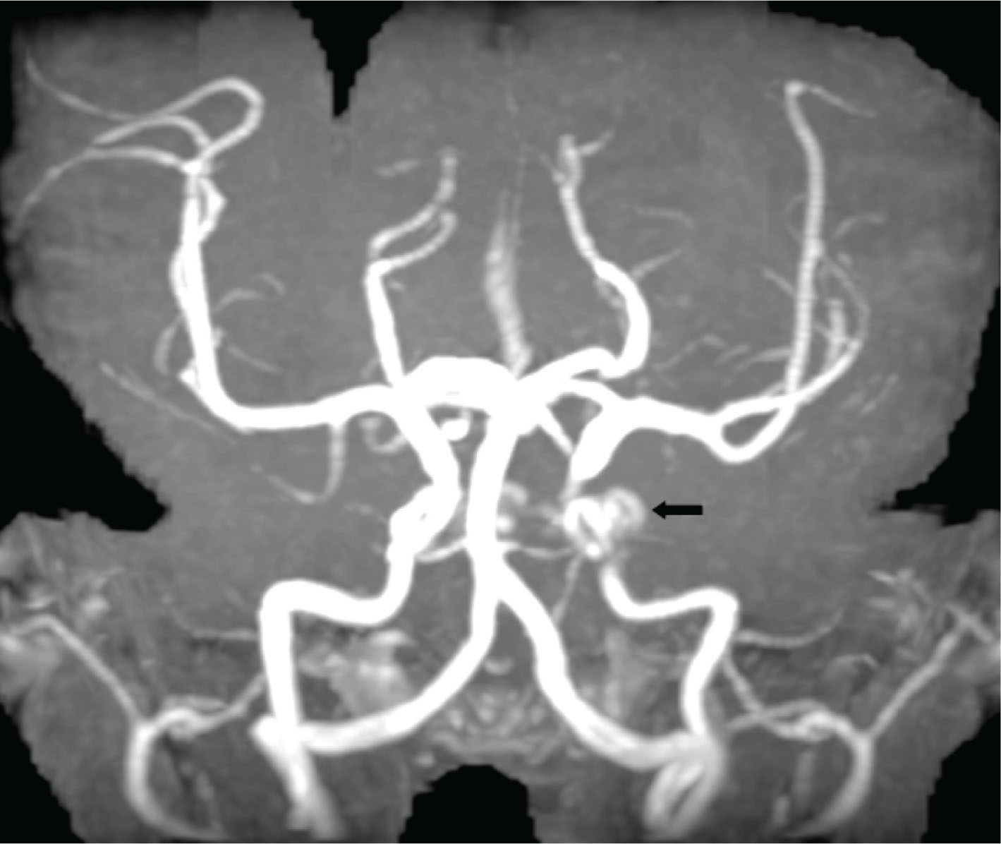 Magnetic resonance angiography scan of a lobulated aneurysm (arrow) involving the left cavernous internal carotid artery.