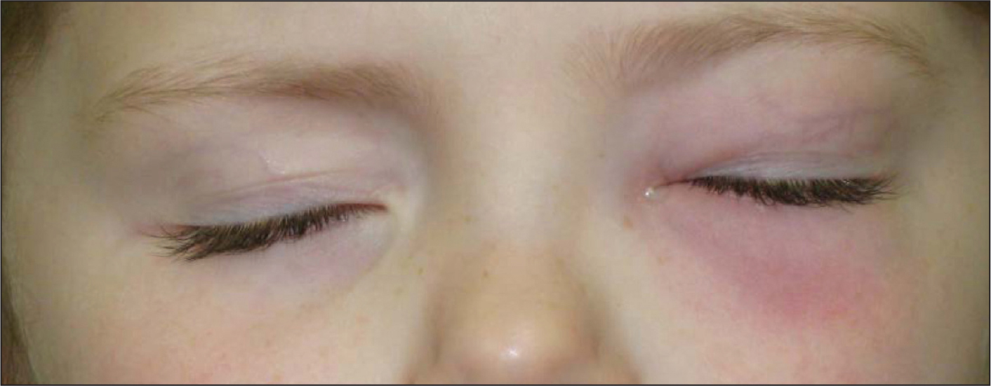A 6-year-old white girl has had rhinorrhea and cough for 3 days. She developed redness and tenderness of the left lower eyelid on the third day.