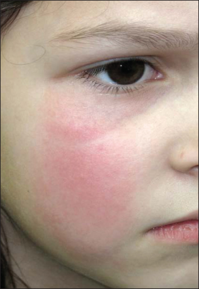 A 7-year-old white female with a red flat and tender, well-demarcated rash on her right cheek for 3 days, who has been receiving oral clindamycin for the past 2 days.