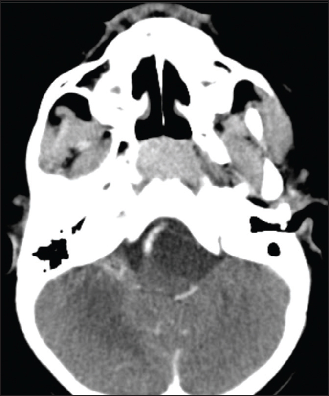 Diffusion-weighted magnetic resonance imaging (MRI) scan of the brain demonstrating mild restricted diffusion.