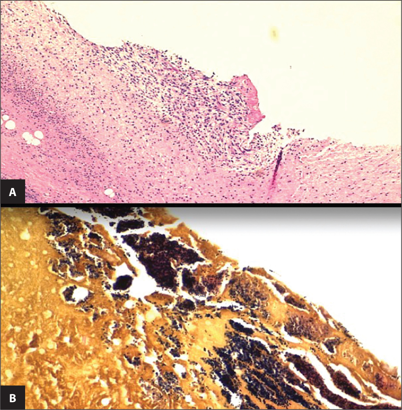 Pathologic sections of the patient's aortic valve vegetations. (A) The presence of granulation tissue suggests the duration of inflammation exceeded 7 days. Significant necrosis of valve tissue was also visible. (B) Gram stain of the vegetation revealed numerous gram-positive cocci in clusters.