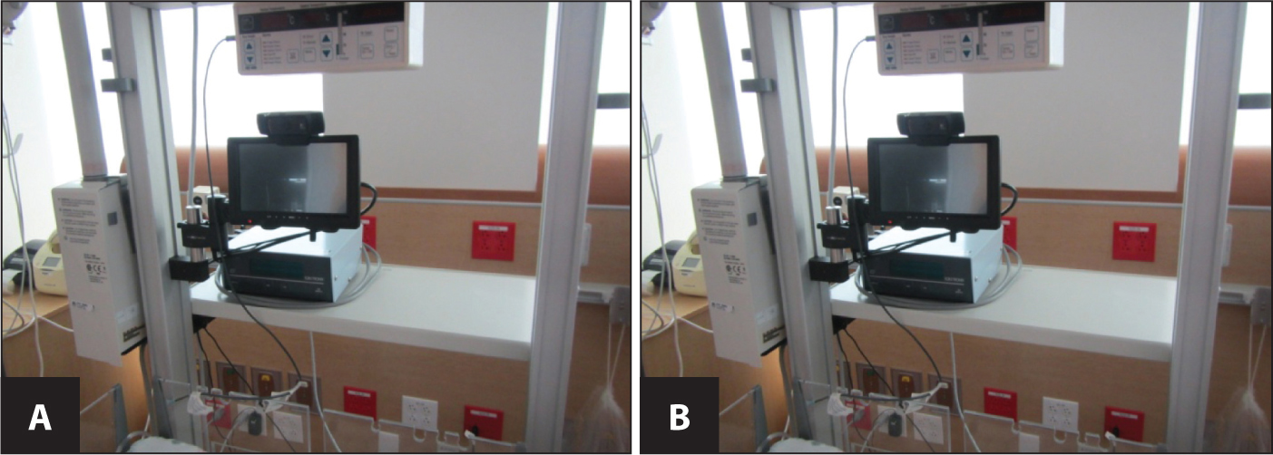 (A) Remote resuscitation bedside computer and monitor. (B) Remote resuscitation bed computer and monitor.