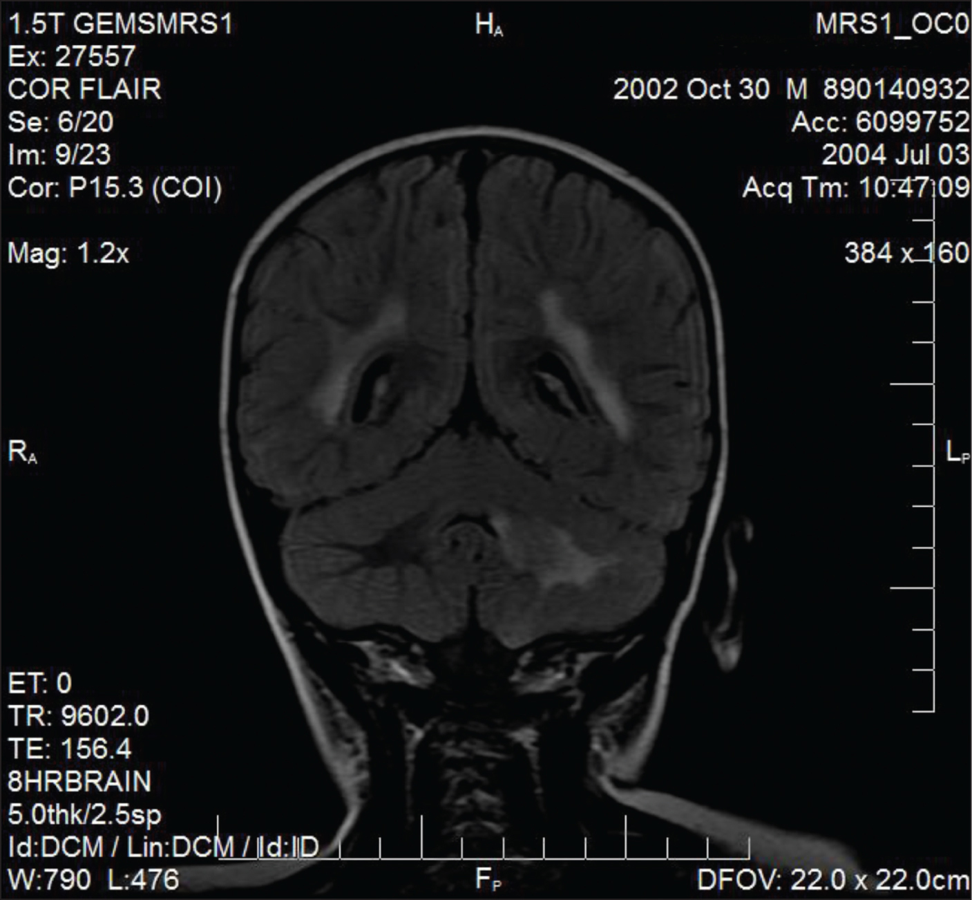 Fluid-attenuated inversion recovery (FLAIR) magnetic resonance imaging (MRI) demonstrating left cerebellar demyelinating lesion in a teenager with acute-onset ataxia. Similar lesions are noted in the cortex, as well. A final diagnosis of multiple sclerosis was made on the basis of imaging and investigations.Image courtesy of Lalitha Sivaswamy, MD.