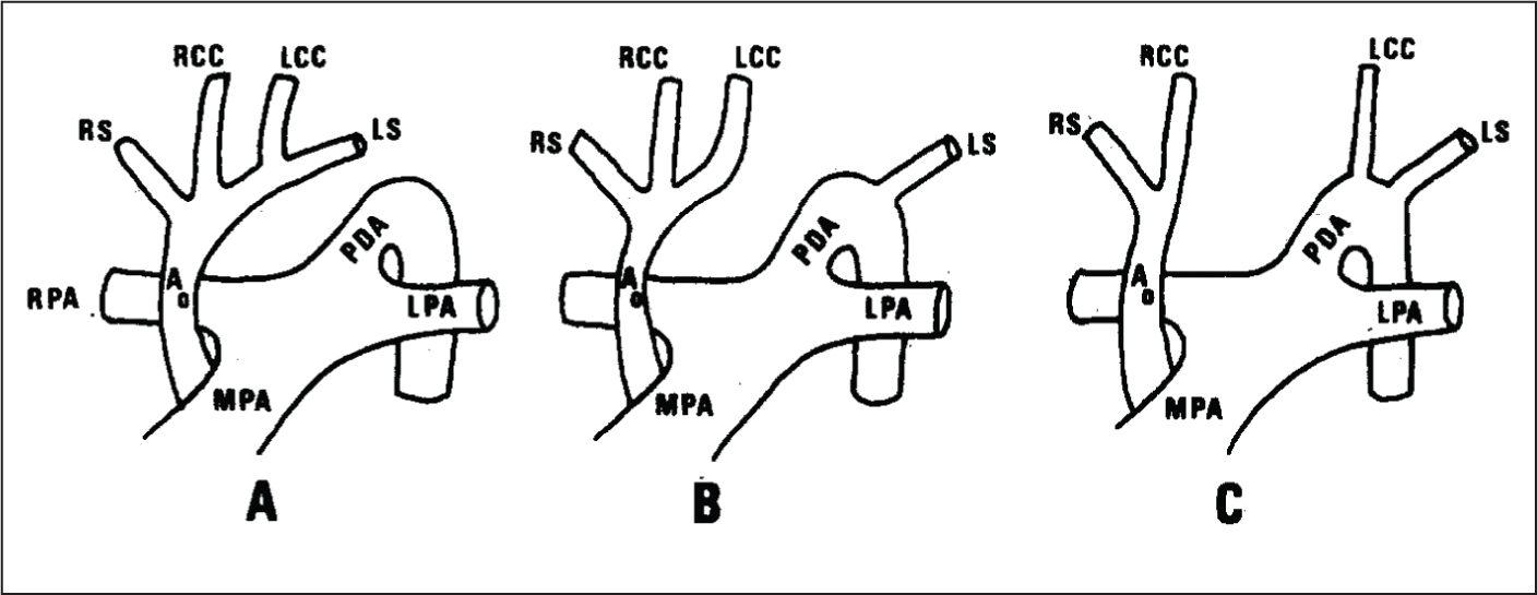 Classification system of interrupted aortic arch. Type A occurs distal to the left subclavian artery. Type B occurs between the left common carotid and the left subclavian arteries. Type C occurs between the innominate artery and the left carotid artery. Ao = ascending aorta; LPA = left pulmonary artery; MPA = main pulmonary artery; PDA = patent ductus arteriosus; RCC = right common carotid artery; RPA = right pulmonary artery; RS = right subclavian artery. The innominate artery or the right brachiocephalic artery is the first branch of the aortic arch and divides into the RS and the RCC.