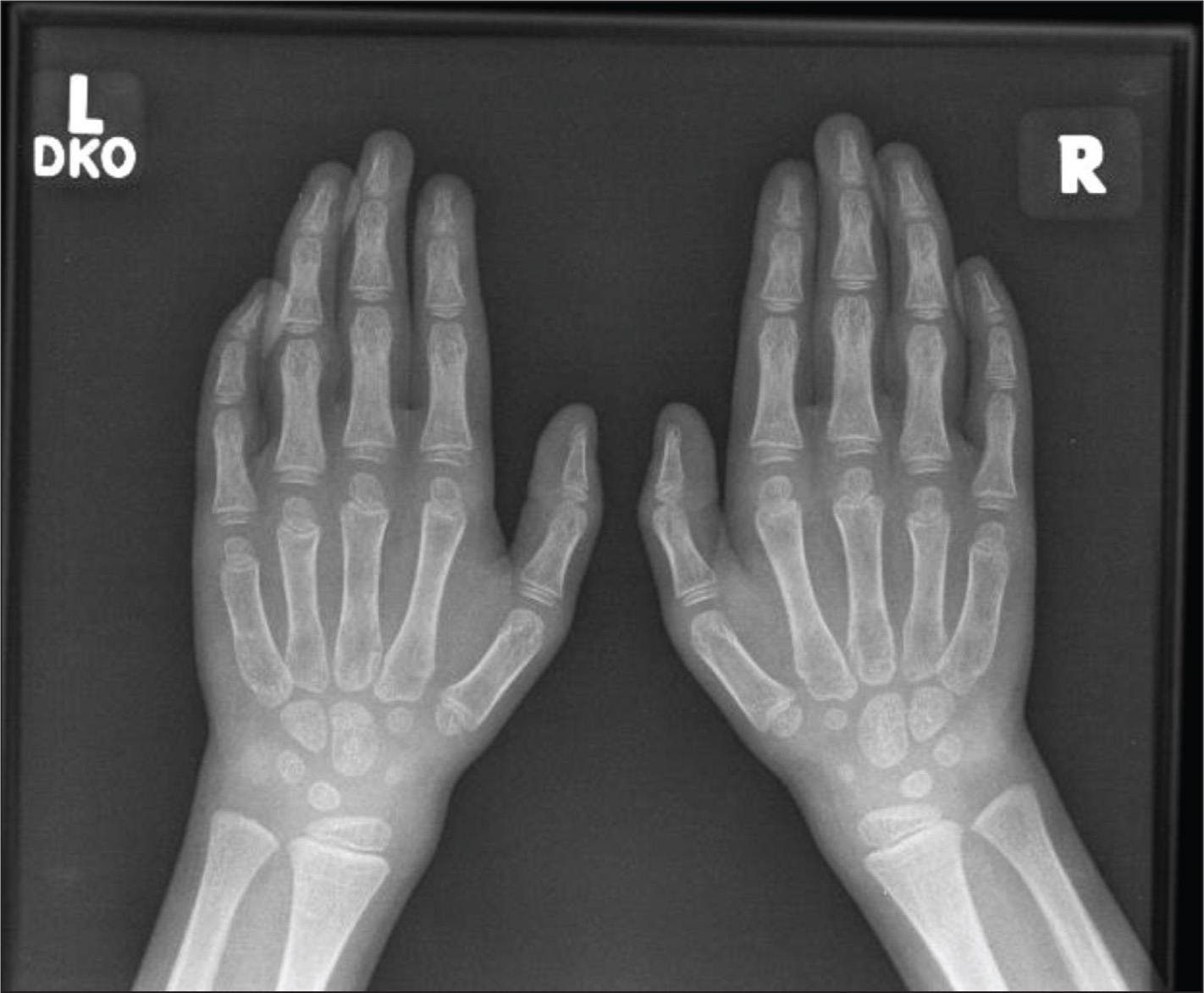 Radiograph of the hands shows mild flexion contractures at the fifth distal interphalangeal joints bilaterally, as well as generalized osteopenia.