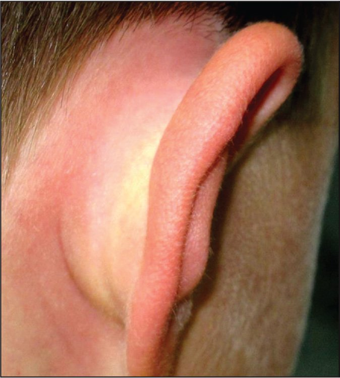 A 7-year-old male with a 1-week history of severe ear pain, particularly the tragus, and mild otorrhea during the summer that has acutely worsened in the past 2 hours. Therapy with oral amoxicillin twice daily was started 4 days ago, along with topical ofloxacin otic drops twice daily. How should you proceed?