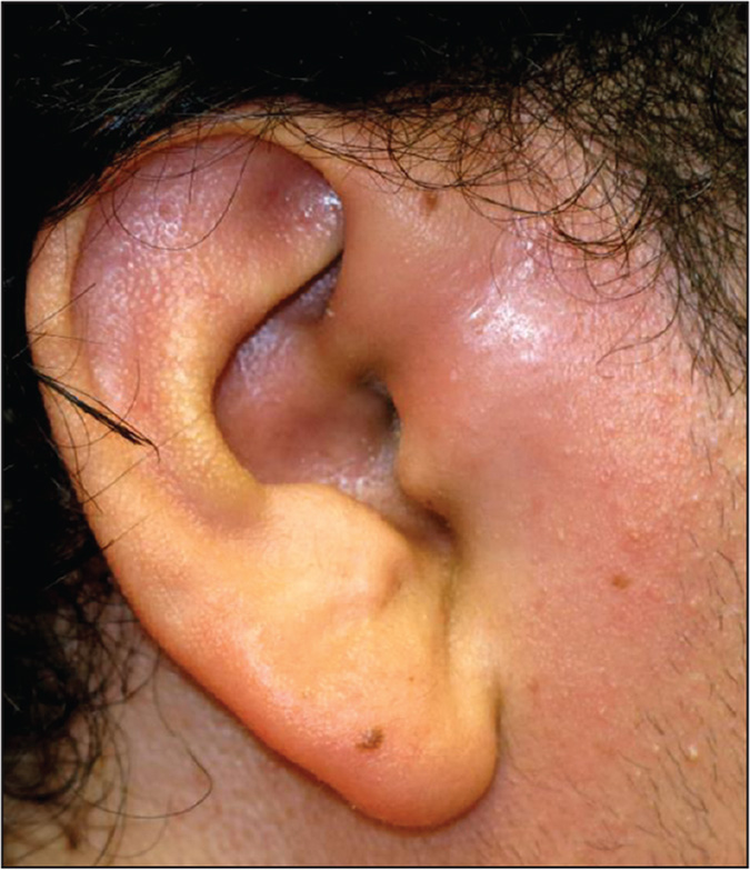 A 16-year-old Guatemalan male was diagnosed with acute otitis media (AOM) 2 days earlier when his swollen ear canal was full of purulent debris, for presumptive AOM otorrhea. He was started on oral cefixime therapy but now has acutely worsened with severe pre-auricular redness, and ear canal and tragus pain. You are uncertain how to proceed, so you ask your senior partner for advice.