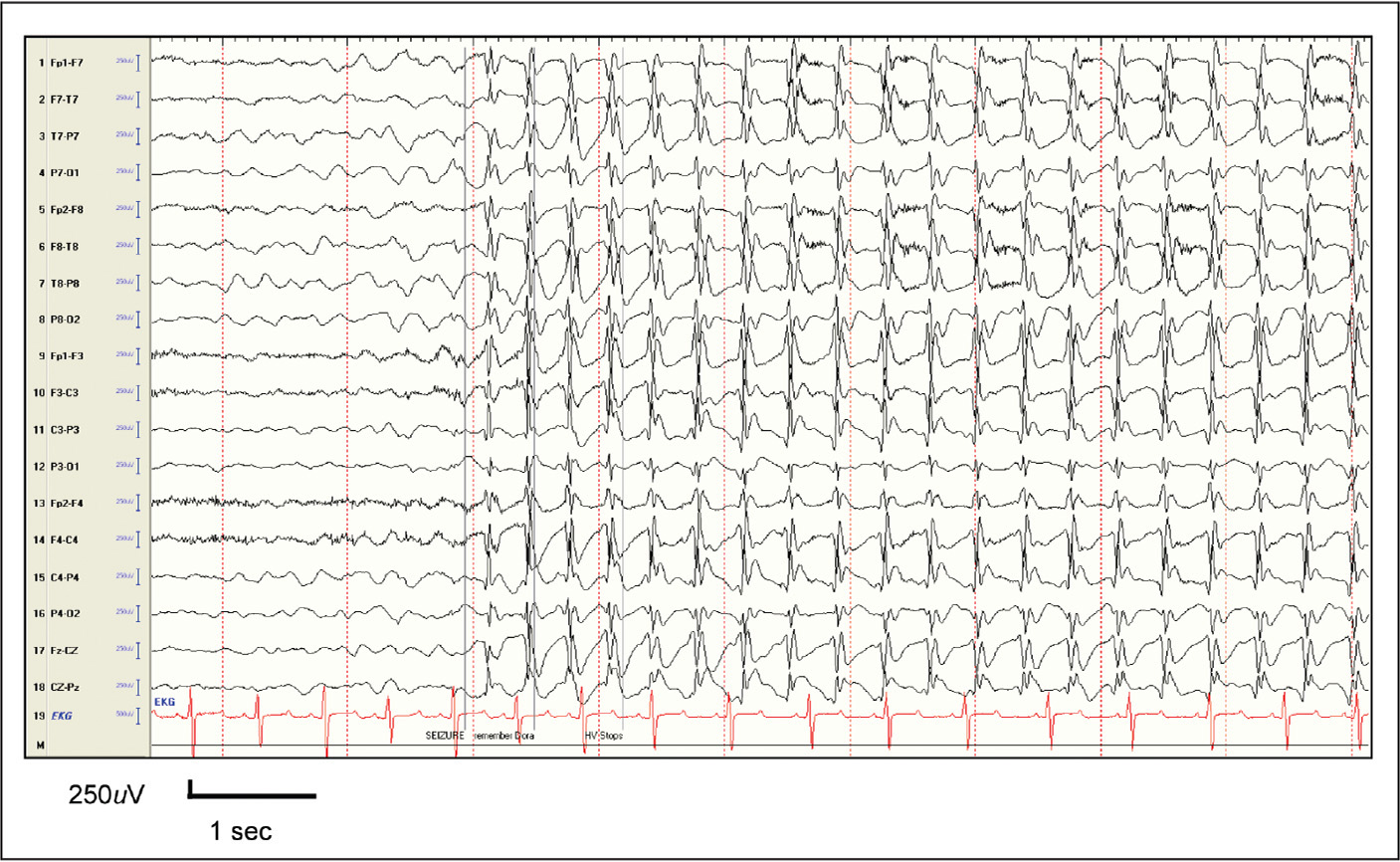 Ictal discharges in childhood absence epilepsy showing a 5-year-old patient who stopped hyperventilating due to 3 Hz spike-and-wave discharges. She had no memory of the word given to her during the induced-absence seizure.