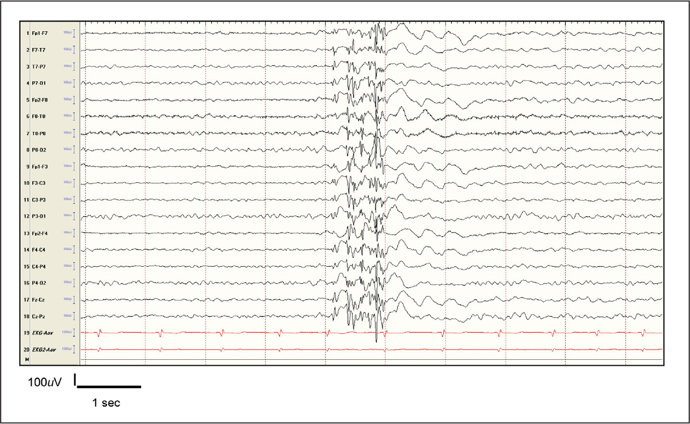Interictal discharges in juvenile myoclonic epilepsy showing an 18-year-old female with diffuse polyspikes lasting approximately 1 second with no clinical signs.