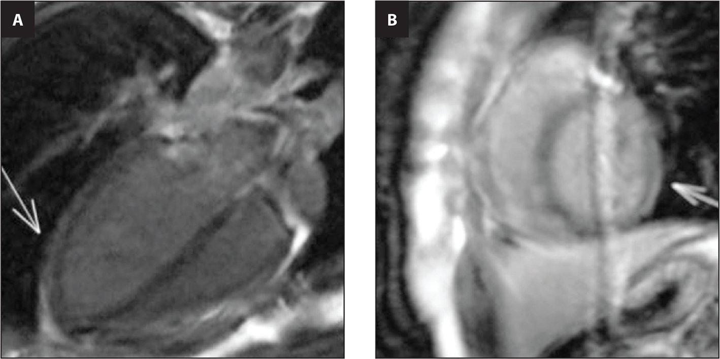 Cardiac magnetic resonance imaging. (A) Four-chambers slice highlighting uptake contrast at lateral and posterior wall after injection of gadolinium (arrow). (B) Cardiac short-axis cut highlighting uptake contrast at lateral wall after injection of gadolinium (arrow).