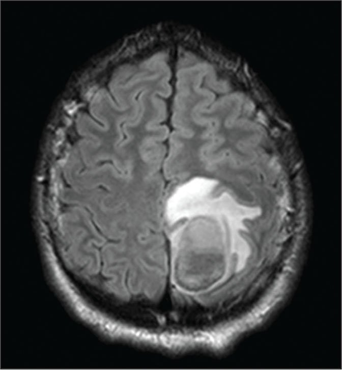Magnetic resonance imaging scan of the brain showing a 3 × 4.3 × 2.8 cm ring-enhancing mass lesion in the left parietal lobe, consistent with metastatic disease.