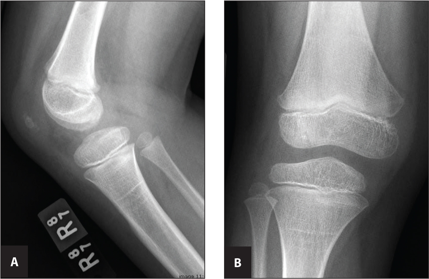 (A) Anterior/posterior radiograph and (B) lateral radiograph of the right knee.