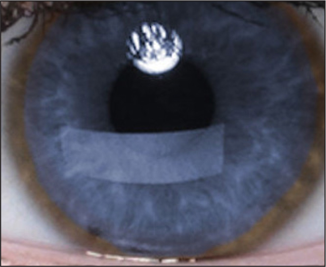 Kayser-Fleischer rings seen on slit-lamp examination appear as a golden-brown ring of pigment at the corneo-scleral junction. Image used with permission from the Wilson Disease Association.