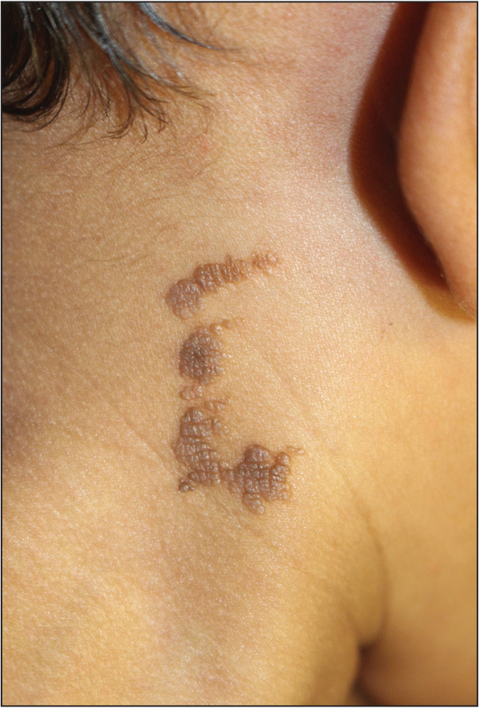 Epidermal nevus on the posterior neck presenting as tan to brown discontinuous plaque in blaskcholinear distribution.