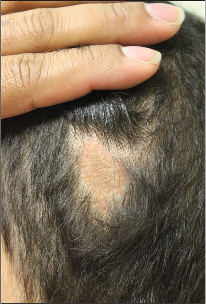 Nevus sebaceous presenting as alopecic tan-yellow plaque on the scalp.
