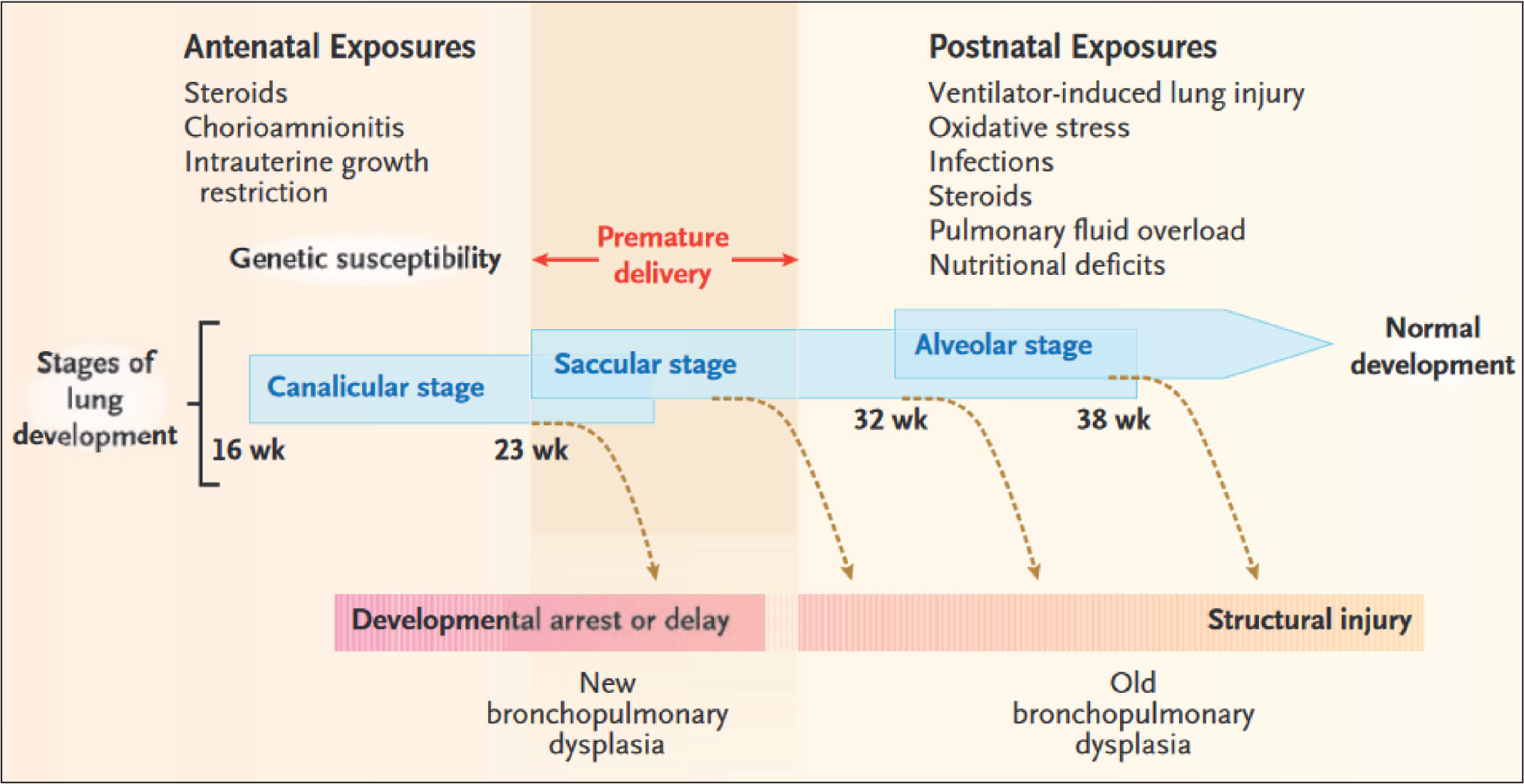 Stages of lung development, potentially damaging factors, and types of lung Injury. In premature newborns, the lungs are often exposed to several sources of injury, both before and after birth. Such exposures, as well as genetic susceptibility to problematic lung development, may cause direct airway and parenchymal damage and induce a deviation from the normal developmental path. Depending on the timing and extent of the exposures, lung injury may range from early developmental arrest (new bronchopulmonary dysplasia) to structural damage of a relatively immature lung (old bronchopulmonary dysplasia). Premature infants born at a gestational age of 23 to 30 weeks (region shaded light red) during the canalicular and saccular stages of lung development are at the greatest risk for bronchopulmonary dysplasia. Reprinted from Baraldi and Filippone36 with permission from the Massachusetts Medical Society. © 2007 Massachusetts Medical Society.