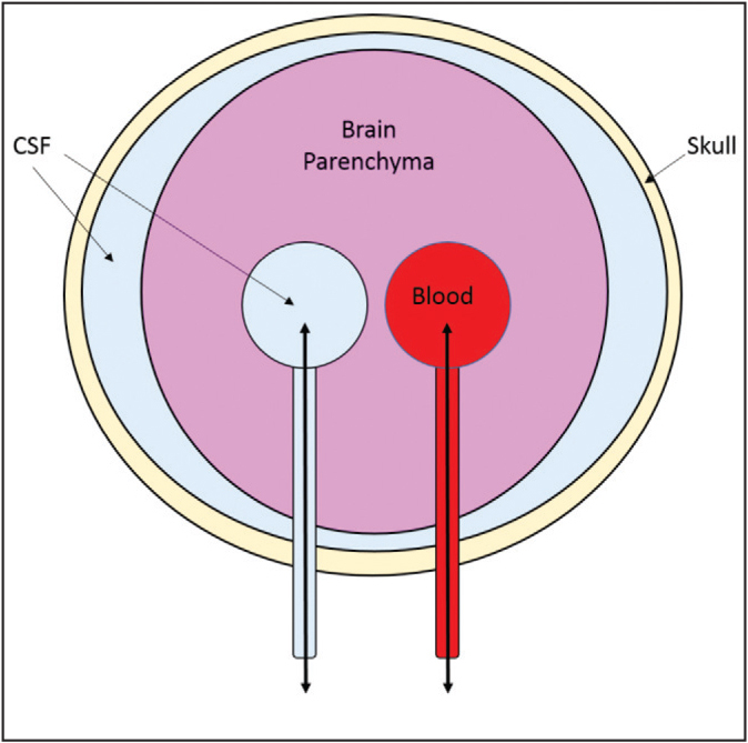 The skull is a fixed space that contains brain parenchyma, CSF, and blood. When there is an increase in intracranial pressure due to one component (such as a bleed) in a closed head injury, another component must give way. This can potentially lead to herniation of the brain. CSF, cerebrospinal fluid.