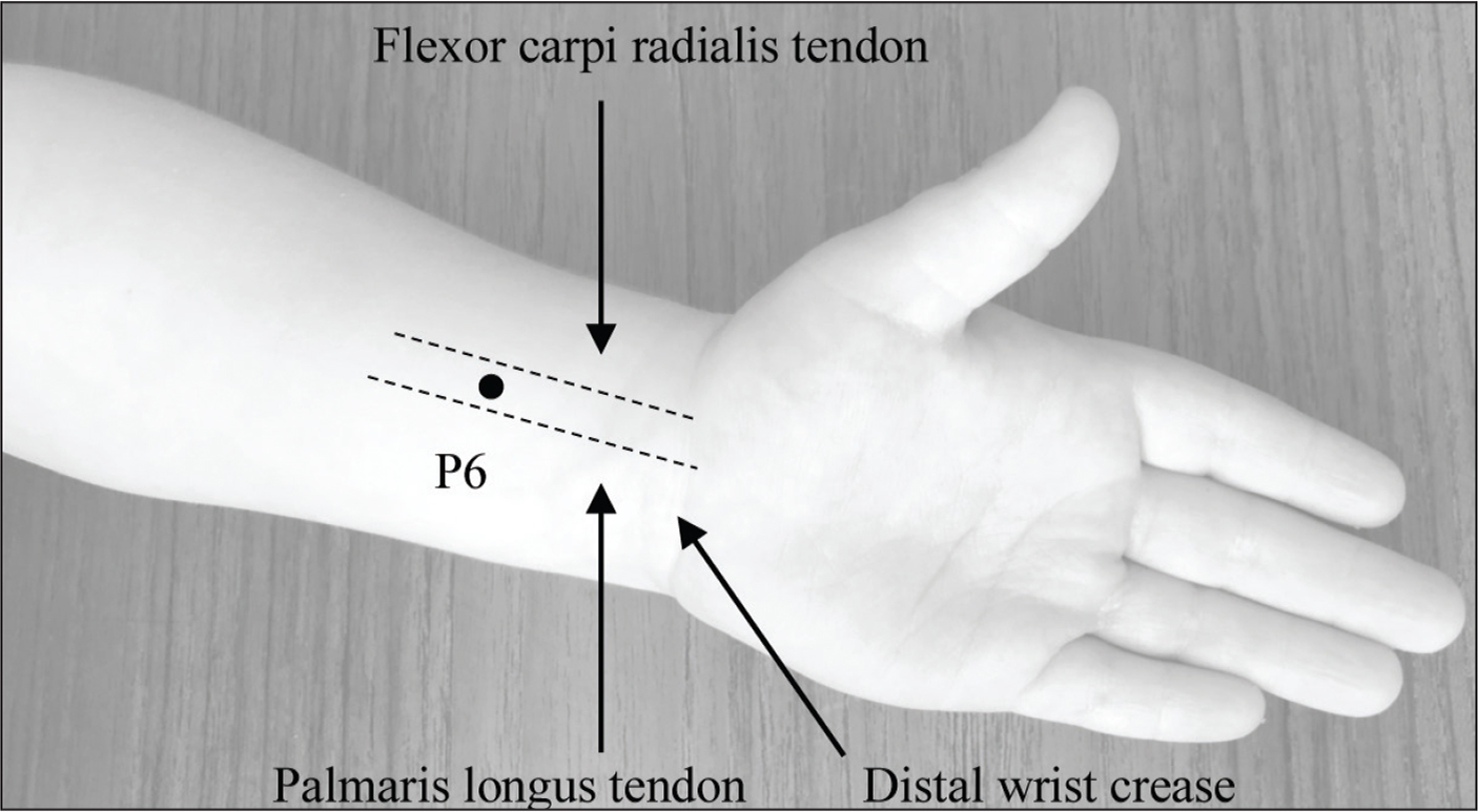 Pericardium6 acupuncture and acupressure point for nausea relief. The point is found approximately three finger-widths (patient's fingers) proximal to the distal wrist crease between the palmaris longus and flexor carpi radialis tendons.