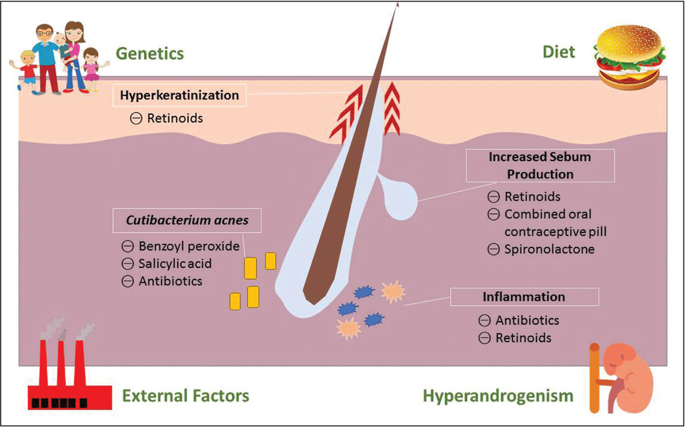Pathogenesis of acne.