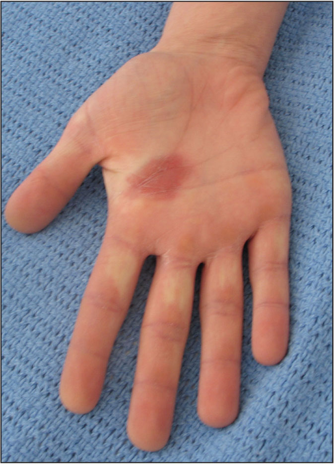 Fixed drug eruption. Dusky patch on the palm, which was recurrent upon drug ingestion.