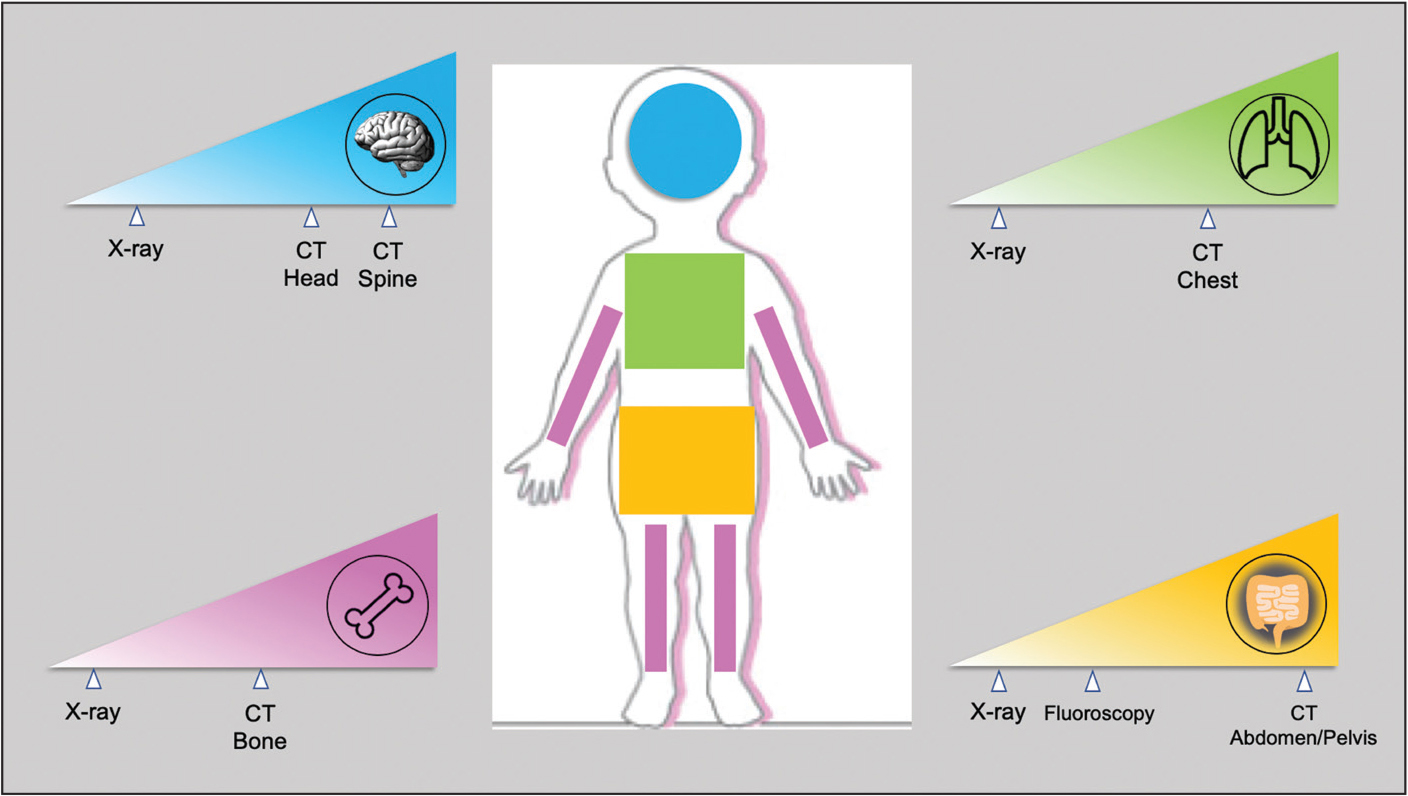 Relative radiation dose to children from common imaging examinations. Left to right on each gradient triangle for a given imaging study of a specific body part depicts lower to higher radiation dose. CT, computed tomography.