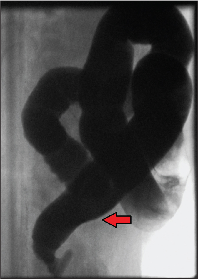 Fluoroscopic lateral spot image of the colon after retrograde instillation of water-soluble contrast. Demonstrated is a short segment of narrowed rectum with an apparent transition zone (red arrow) to the mildly dilated sigmoid and more proximal colon. Subsequent rectal suction biopsy confirmed short-segment Hirschsprung's disease.