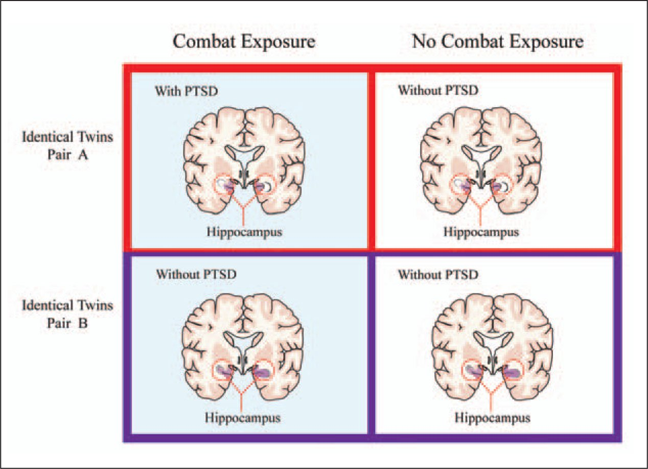 the study of post traumatic stress disorder Post-traumatic stress disorder is a condition created by exposure to a psychologically distressing event outside the range of usual human experience, one which would be markedly distressing to .