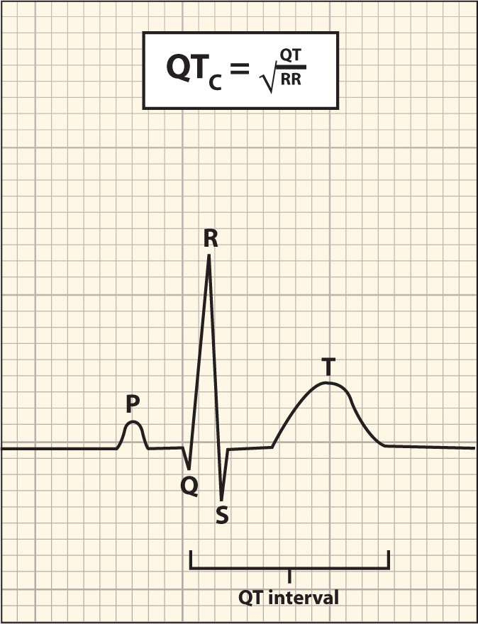 Formula for QT interval (QTc) measurement.Image courtesy of Marley Doyle, MD. Reprinted with permission.