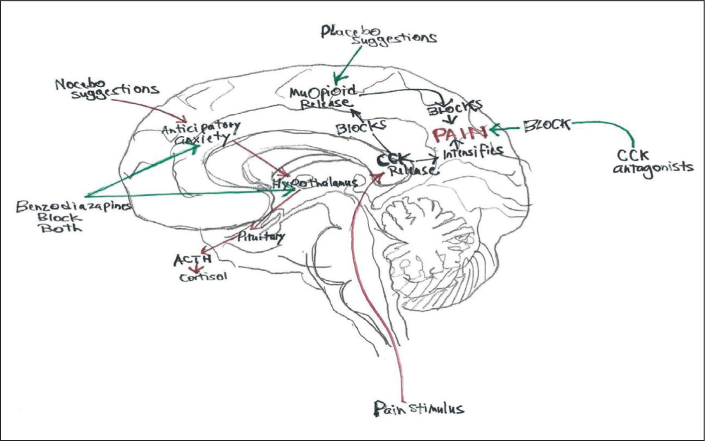 The neurocircuitry of pain and anxiety are similar.Figure courtesy of Devdutt Nayak, MD.