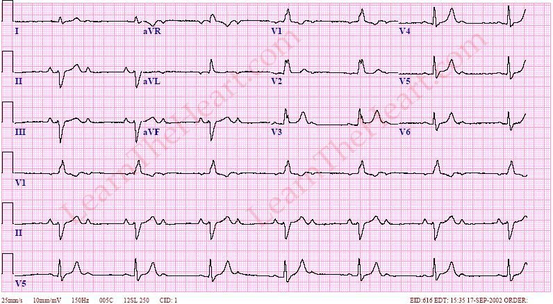 2:1 AV Block ECG (Example 1)  2 1 Degree
