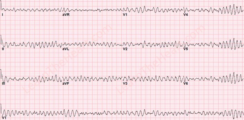 VentricularFibrillation-WM