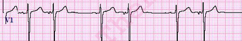 PAC-ECG-Criteria