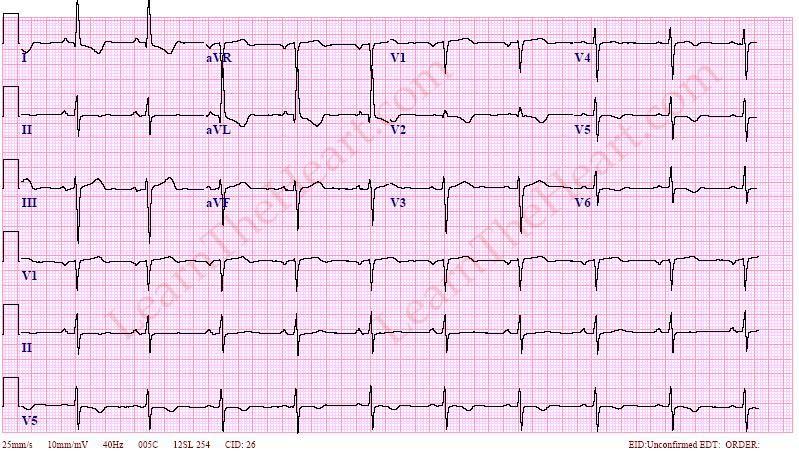 left ventricular hypertrophy  example 4