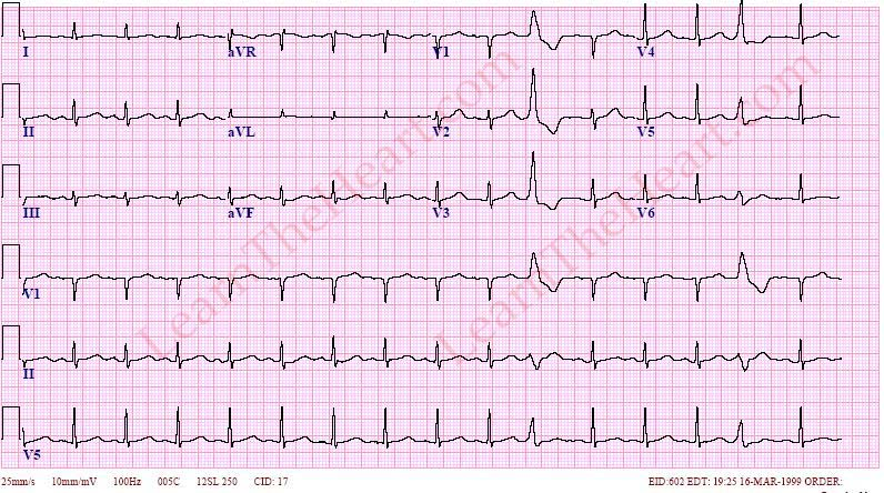 premature ventricular contractions pvcs example 3