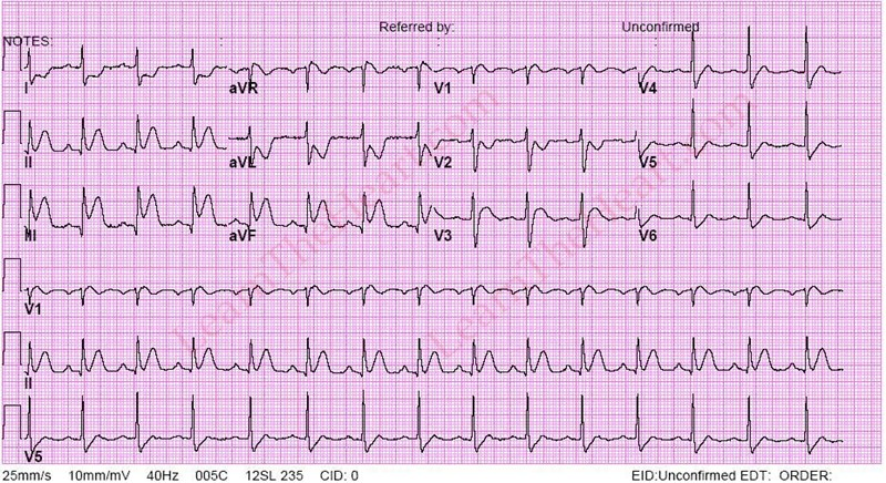 Inferior-STEMI-3