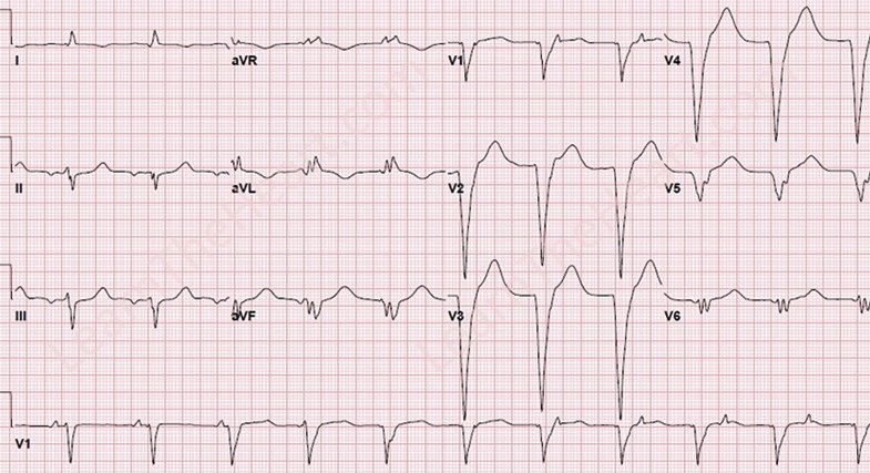 Idioventricular Rhythms Ecg Review Criteria And Examples